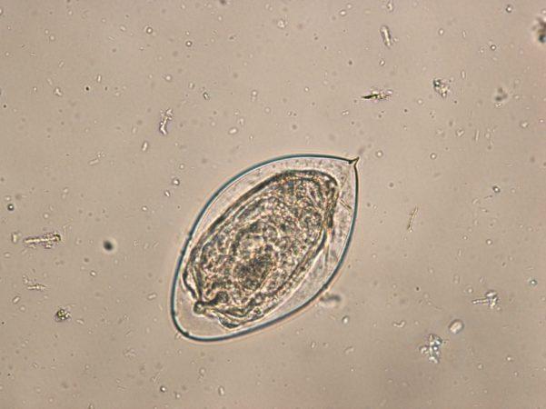 яйцо шистосомы гематобиум