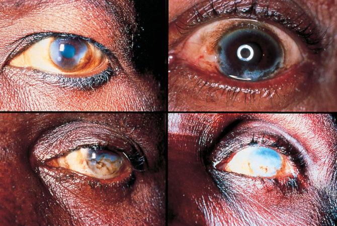 Поражение глаз (склерозирующий кератит) при онхоцеркозе