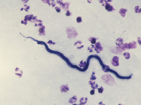 Loa loa - microfilaria