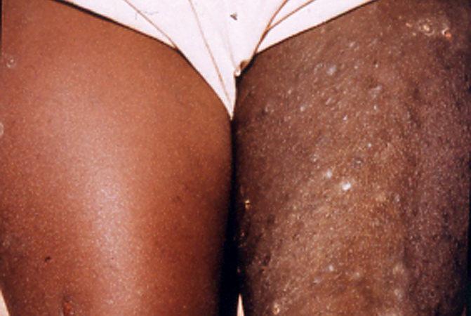 поражение кожи при онхоцеркозе