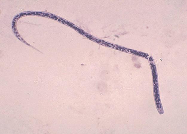 microfilaria O. Volvulus