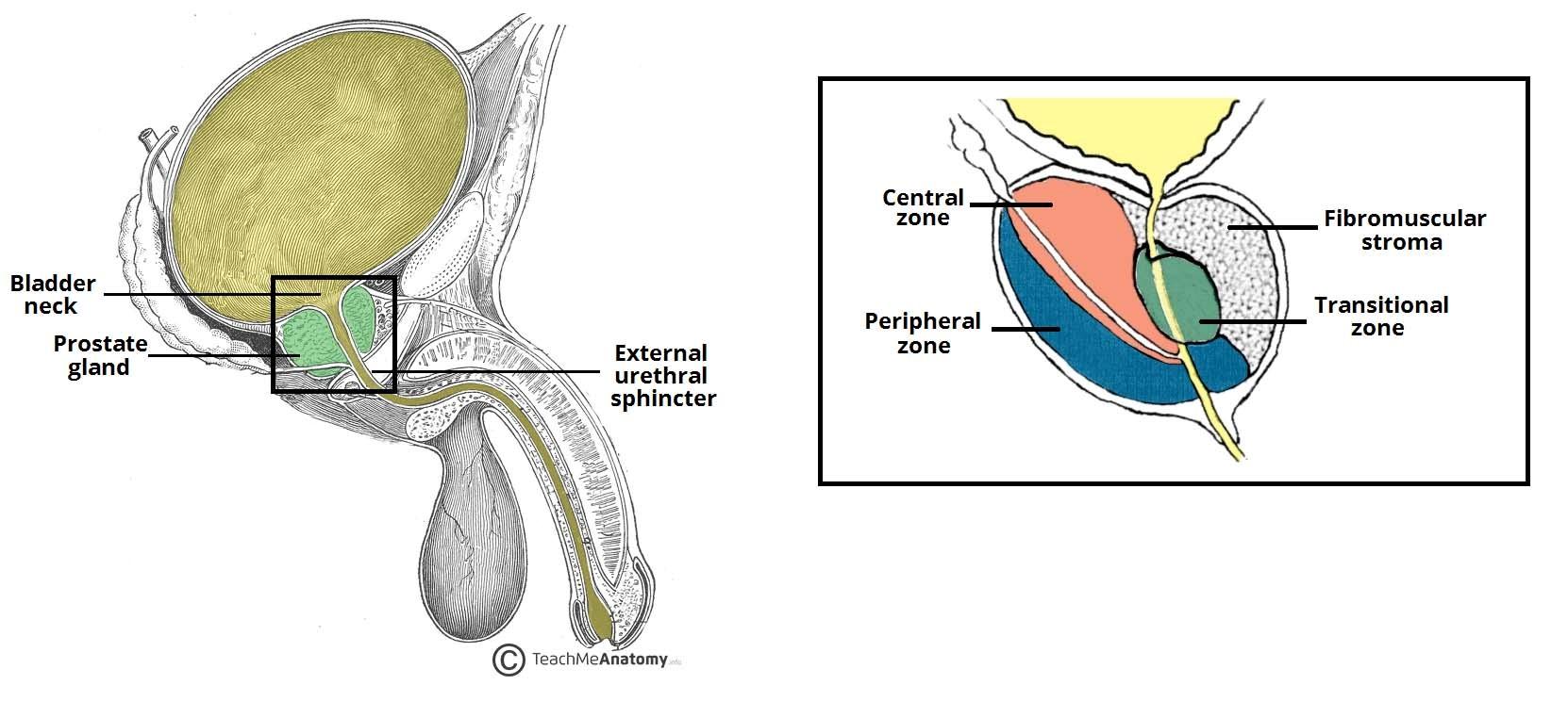 Дети рак предстательной железы