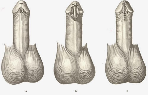 операция Бека при гипоспадии