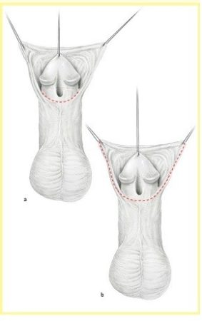 Операция при гипоспадии TIP - 1 этап