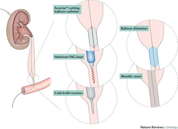 Варианты эндоскопической коррекции стриктур мочеточника