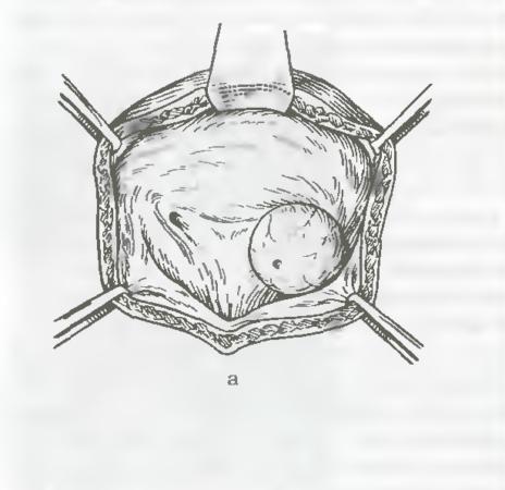 Левостороннее уретероцеле
