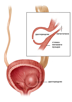 Схема строения уретероцеле