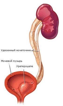 Левостороннее уретероцеле, ассоциированное с удвоением мочеточника