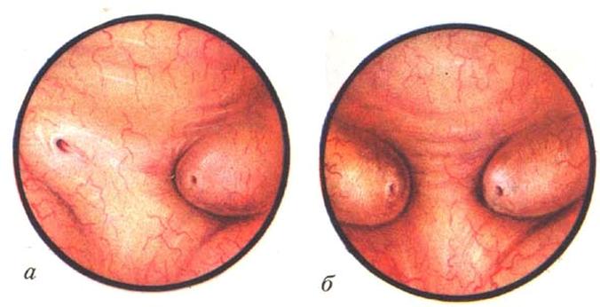 Вид одностороннего и двухстороннего уретероцеле при цистоскопии
