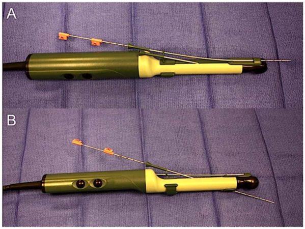 Пистолеты для забора биоптатов из простаты (A – end-fire, B – side-fire)