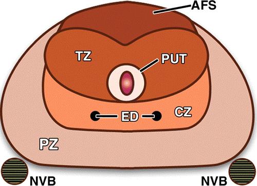 Схема строения предстательной железы. AFS – передняя фиброзно-мышечная строма, CZ – центральная зона, ED – эякуляторные протоки, NVB – сосудисто-нервные пучки, PUT – периуретральная ткань, PZ – периферическая зона
