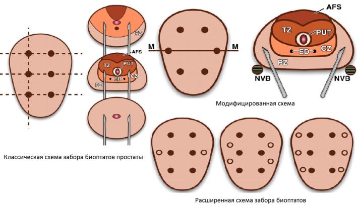 Схемы забора материала для исследования при биопсии простаты