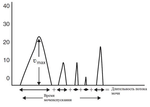 На урофлоуграмме отражен расчет времени мочеиспускания и длительности потока мочи