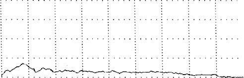 Урофлоуметрическая кривая при обструкции уретры