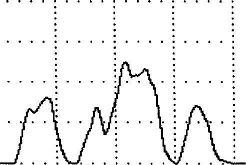Прерывистая урофлоуграмма у пациента после цистэктомии