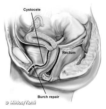 Схема операции Бёрча