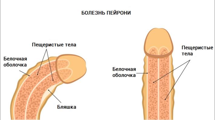 Болезнь Пейрони, схематичное изображение