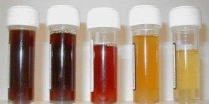 Норма эритроцитов в моче у женщин, мужчин и детей