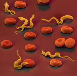 Паразиты в организме человека: классификация, симптомы, диагностика, лечение, профилактика