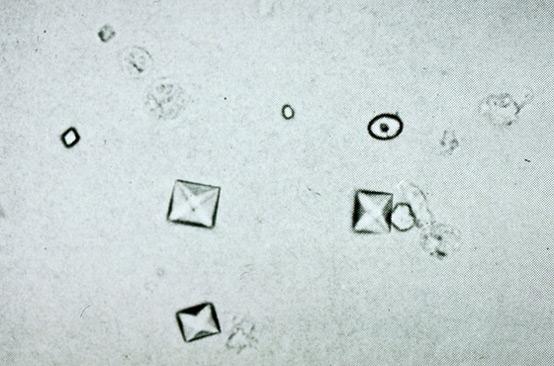 Анализ мочи на соли: оксалаты и фосфаты, суточный, общий и другие
