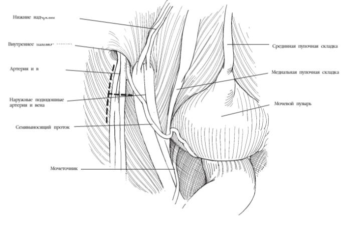 Лапароскопическая анатомия области внутреннего пахового кольца