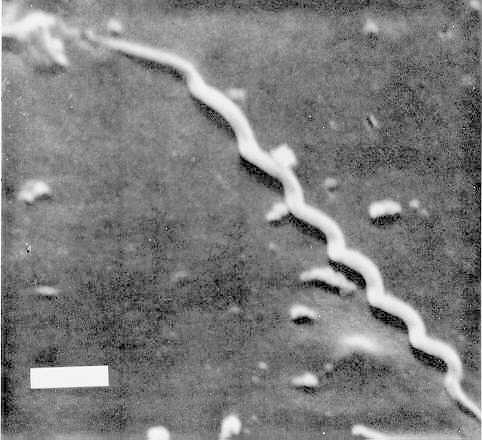 Электронная микрофотография Treponema pallidum