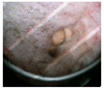Трансуретральная резекция простаты: во время операции визуализируются конкременты