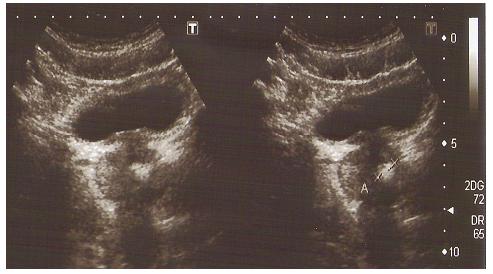 Ультрасонография органов малого таза (в паренхиме простаты определяется конкремент)