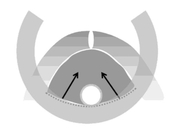 Механизм действия среднеуретрального слинга