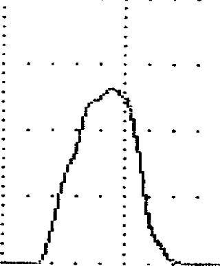 Нормальная урофлоуграмма у женщины 49 лет