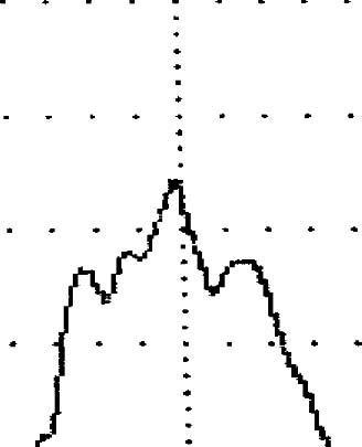 Нормальная урофлоуграмма у мужчины 53 лет