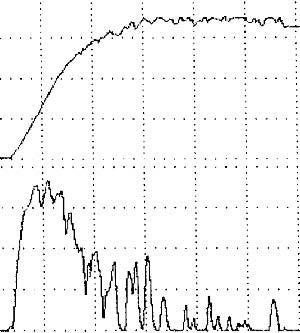 Нормальный прерывистый тип урофлоуграммы у больной 81 года с жалобами на учащение диуреза, никтурию