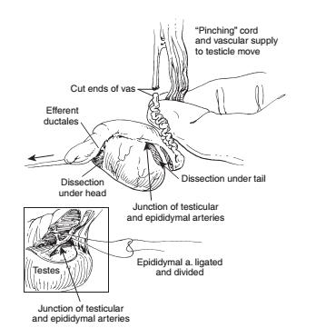 Схема операции эпидидимэктомии