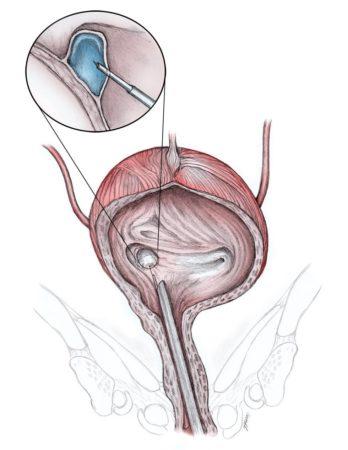 Схема введения склерозанта